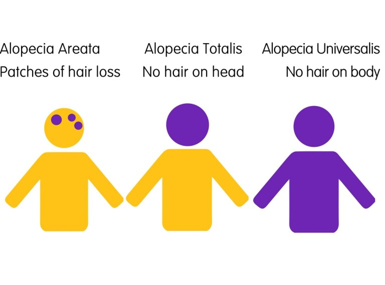 types-of-alopecia-graphic-768x569